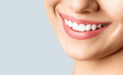 【黄ばみ除去】長瀬駅近くで「歯のクリーニング・歯石取り」を行っている歯医者さん