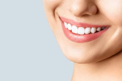【黄ばみ除去】泉ヶ丘駅近くで「歯のクリーニング・歯石取り」を行っている歯医者さん
