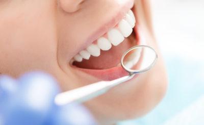 【黄ばみ除去】茨木市駅近くで「歯のクリーニング・歯石取り」を行っている歯医者さん
