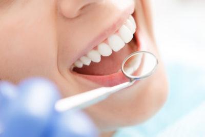 【歯石・黄ばみ除去】八尾市で「歯のクリーニング・歯石取り」を行っている歯医者さん