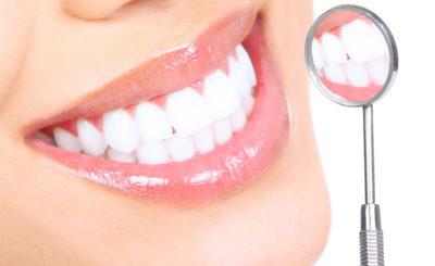 【黄ばみ除去】桃山台駅近くで「歯のクリーニング・歯石取り」を行っている歯医者さん